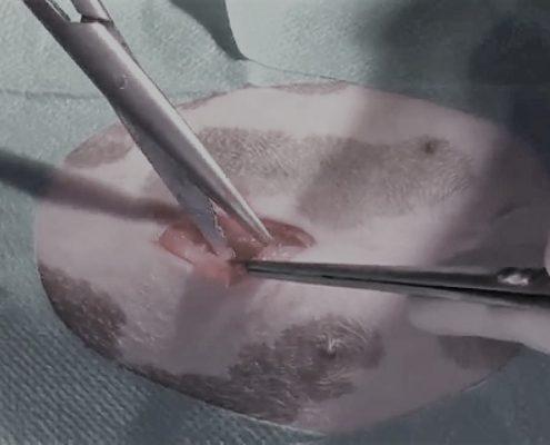 chirurgia mini invasiva breccia operatoria classica