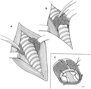 anelli tracheali in plastica
