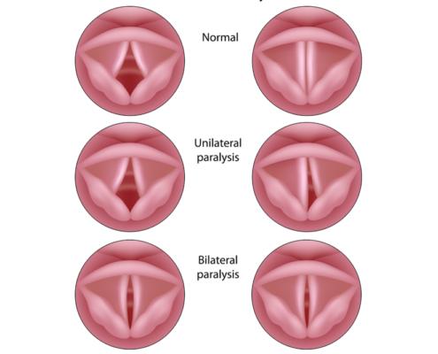 paralisi laringea normale monolaterale e bilaterale
